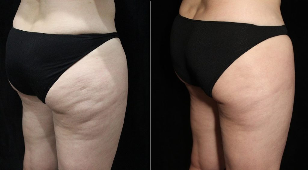 btl-cellutone-before-after